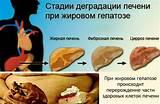 Барсучий жир и геморрой