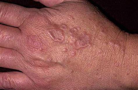 環状 肉芽 腫