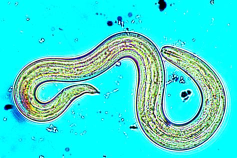 Health Officials Are Investigating A Scary Brain Parasite ...