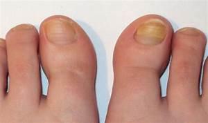 Чем лечить грибок под ногтем на руках
