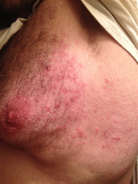 Bumps On My Chest Pictures Photos