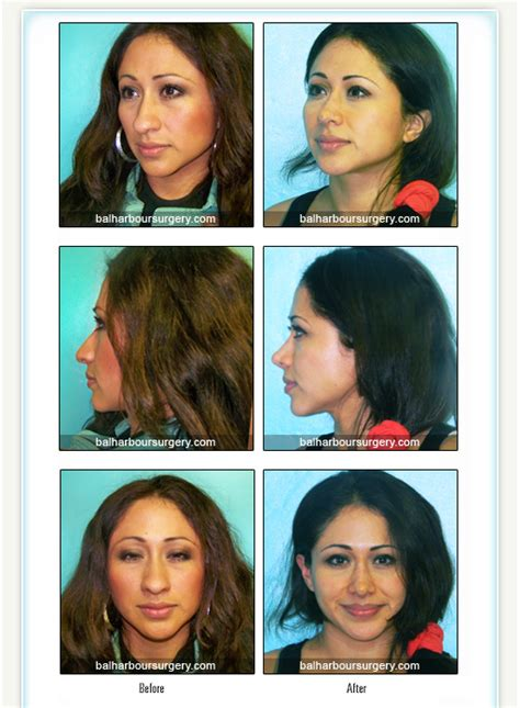 Bal Harbour Plastic Surgery Associates  Before And After. Mcintyre Locksmith Westfield Nj. Hifu For Prostate Cancer Treatment Pros And Cons. Corporate Account Takeover Jamacian Rum Punch. Home Wireless Security Camera Systems Do It Yourself. Sac College San Antonio Masters In Tax Online. Agency Insurance Company Low Milage Insurance. Digital Newsletter Templates. Business Technology Applications Lesson Plans