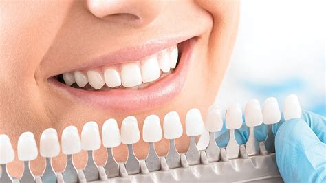 The health care items or services covered by an insurance plan. Dental Veneer In Eatons Hill   Emergency Dentist In Eatons Hill
