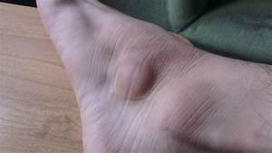 Болят голеностопные суставы после футбола
