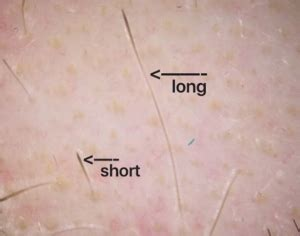 trichoscopy  hair loss neograft hair transplantation