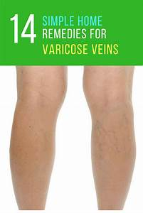 Home Remedies for Varicose Veins - 17 Ways to Get Rid of ...