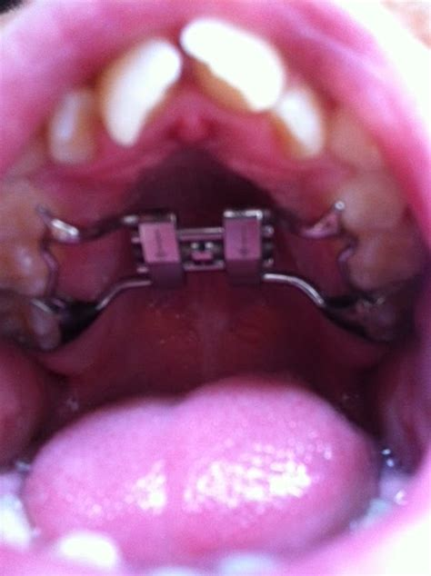 expander olds teeth does braces front tooth hurt palete straighter journey help mum way