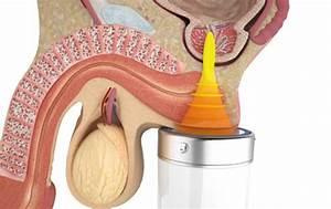 Крем воск здоров от простатита инструкция по применению