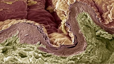 tissue health scanning electron microscope hd stock