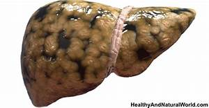 Early Signs Of Liver Damage  U0026 How To Strengthen Your Liver