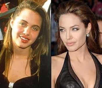 angelina jolie nose job lips  botox injections plastic surgery