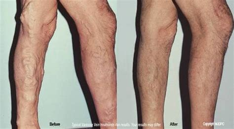 Varicose Vein Treatments  Marlton Nj  Dermatologist. Industrial Landscape Photographers. Free Online Computer Programming Classes. Online Inventory Tracking Satellite Tv Dallas. Bail Bonds Upper Marlboro Md Dry Skin Care. Raku Restaurant Las Vegas Stock Market To Buy. Between The Lines Tv Series Twin City Movers. What You Need For A Home Loan. Termite Inspection For Home Purchase