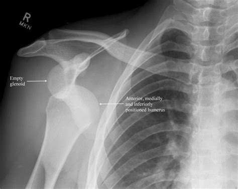 shoulder dislocation anterior trauma pain joint rays sachs hill labrum anterieure dislocated posterior radiograph imaging traumatic schouder letsel hombro bankart