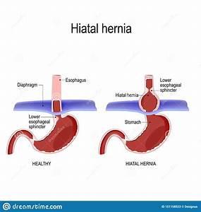 Hiatal Hernia  Vector Diagram Of Normal Anatomy And