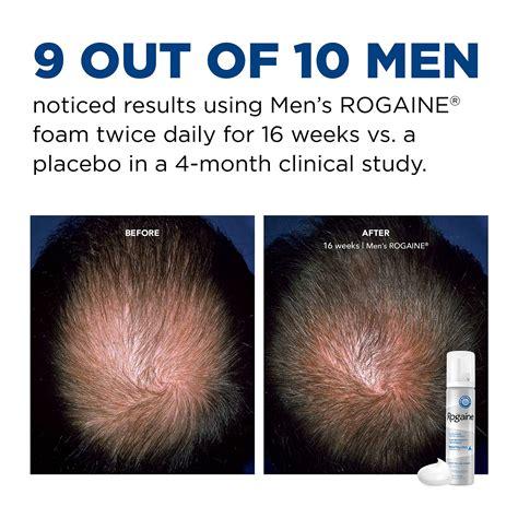 Men's Rogaine 5% Minoxidil Foam for Hair Loss and Hair