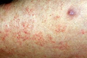 Scabies Rash On Arms