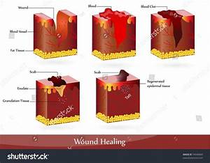 Process Wound Healing Illustration Showing Skin Stock