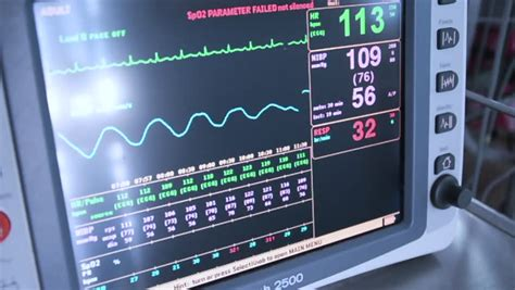 Heart Rate Monitor in Icu Stock Footage Video (100%