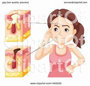 Clipart Of A Medical Diagram Of Skin With Acne And A Woman