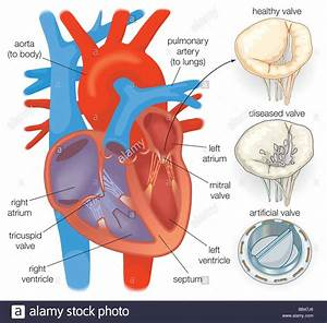 Diagram Showing A Healthy Heart Valve Compared With A