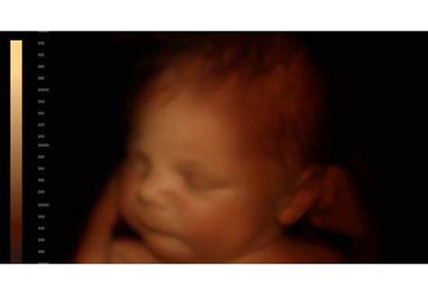 9eme mois grossesse bebe bouge beaucoup 38 semaines de grossesse attention aux probl 232 mes d h 233 morro 239 des apr 232 s l accouchement