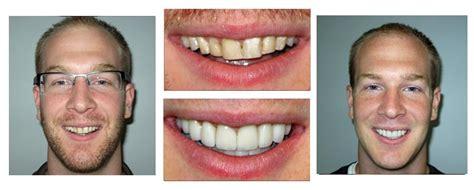 cosmetic dentist lakewood ohio smile gallery cle