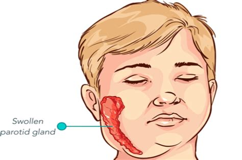 Mumps Parotid Gland