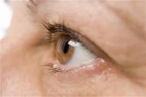 Повышенное глазное давление и лечение