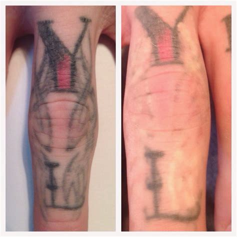 minutes post picosure laser tattoo removal treatment
