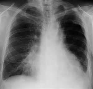 Aspiration Pneumonia Pneumonia