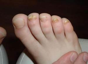 Симптомы поражения грибком ног