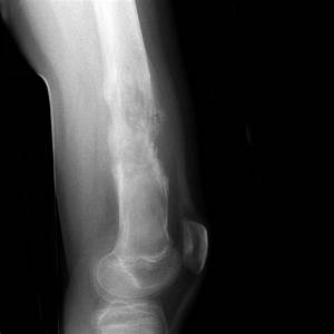 Distal femoral osteosarcoma complicated by pathological ...