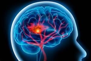 Stroke; Apoplexy; Cerebral Stroke; Cerebrovascular Accident ... Stroke