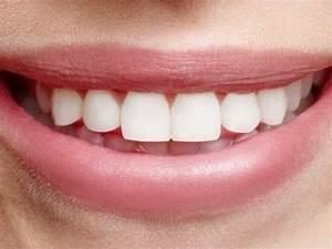 Weiße Zähne Hausmittel : wei e z hne in 10 minuten gelbe z hne aufhellen mit diesen hausmittel youtube liefehacks ~ Frokenaadalensverden.com Haus und Dekorationen