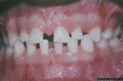 microdontia developmental disturbances  size  teeth