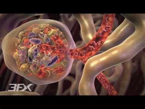 diabetic nephropathy youtube