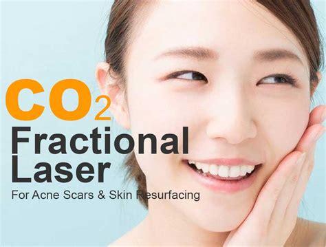 feel great    fractional laser skin resurfacing