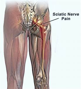 Does Climbing A Ladder Irritate Your Sciatica Nerve