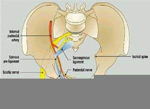 Sacrospinous Ligament Suspension | Free Images at Clker ...