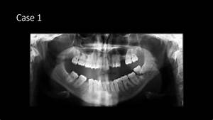 Mandible Fractures On Panoramic Radiographs