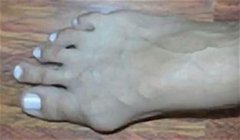 Bolest kloubu palce