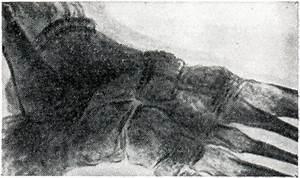 Настойка прополиса на спирту от грибка ногтей