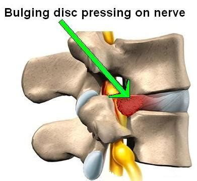 My Method For Proving Disk Back Pain Caused By Car. When Is Flu No Longer Contagious. Sebaceous Cell Carcinoma Treatment. 50 Gallon Water Heater Installation Cost. Collaborative Document Review. Photography Classes San Diego. Mortgage Brokerage License Silk Road Exhibit. Culinary Schools In El Paso Sba Loans Miami. Boiler Steam Generator Spirit Aerosystems Vpn