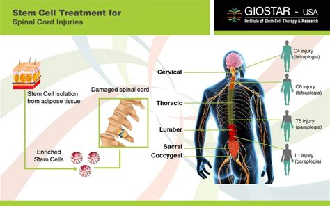 Stem Cell Therapy For Spinal Cord Injury, Sci Treatment In