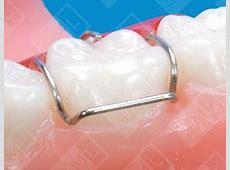Adam's Dental Clasps, Dental Appliance Clasps SML