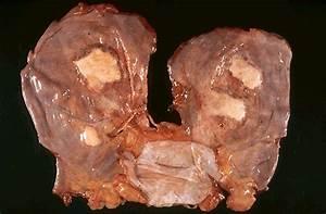 Pathology Outlines - Asbestosis  Pneumonia Asbestos