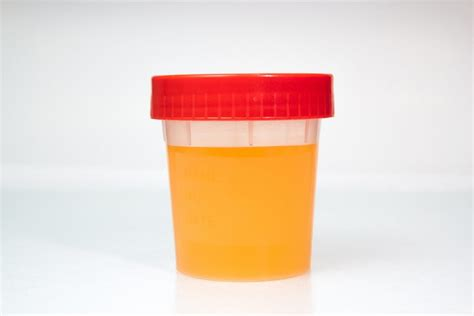 Coloring Urine by Urine Color What Does It