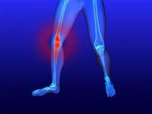 Препарат лефлуномид при ревматоидном артрите