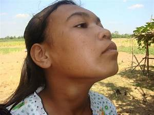 Goiter Surgery Report Of Hout Bohpa
