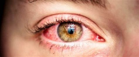 Migraine And Red Eyes